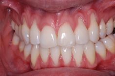 foto retractie gingivala